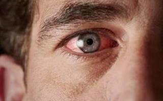 Болят глаза после сварки чем закапать